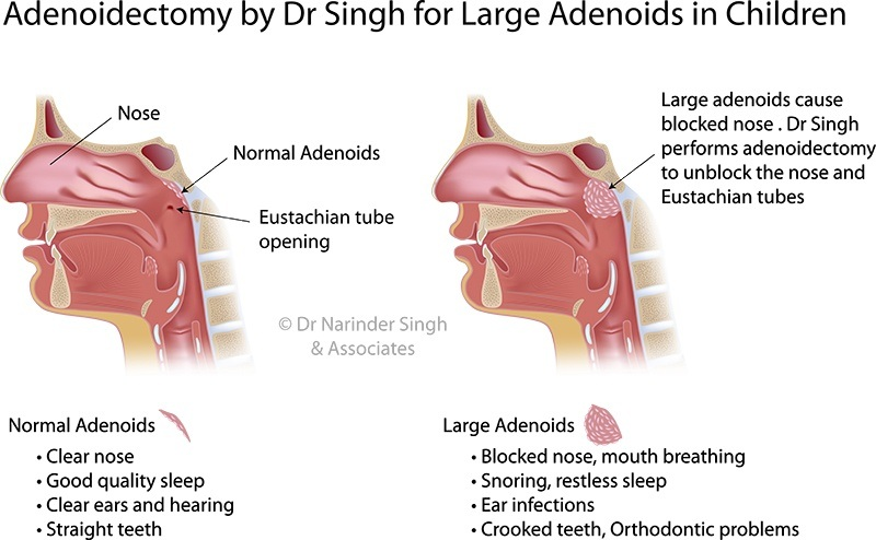 Adenoidectomy sydney nsw breathing problem in children sydney nsw ear nose and throat operating theatres ccuart Images